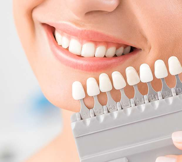 Lilburn Dental Veneers and Dental Laminates